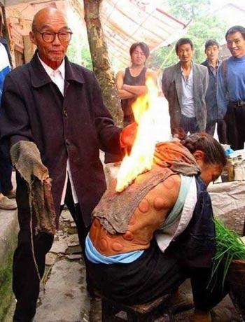 народный целитель в Китае