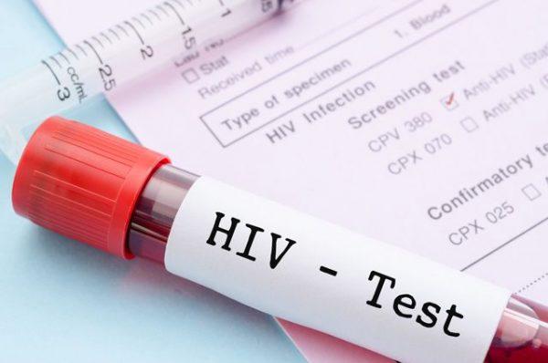 анализы на СПИД
